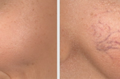 RED VEIN, SKIN TAG & MILIA REMOVAL